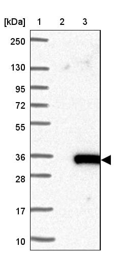 Western blot - Anti-C9orf135 antibody (ab121659)