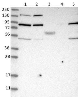 Western blot - Anti-SMCR8 antibody (ab121682)