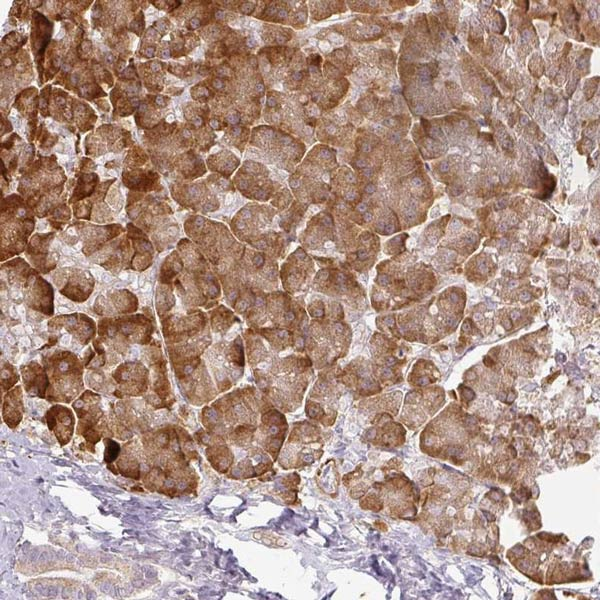 Immunohistochemistry (Formalin/PFA-fixed paraffin-embedded sections) - Anti-CCDC144A antibody (ab121728)