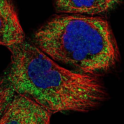 Immunocytochemistry/ Immunofluorescence - Anti-R3HCC1 antibody (ab121740)