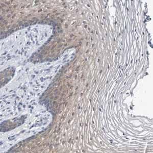 Immunohistochemistry (Formalin/PFA-fixed paraffin-embedded sections) - Anti-FAM83H antibody (ab121816)