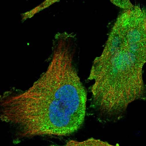 Immunocytochemistry/ Immunofluorescence - Anti-C1orf21 antibody (ab121891)