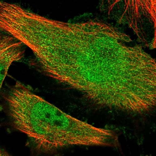 Immunocytochemistry/ Immunofluorescence - Anti-KIAA1614 antibody (ab121978)
