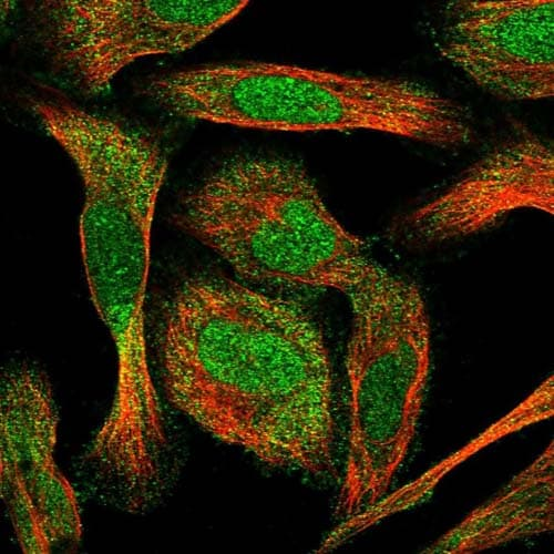 Immunocytochemistry/ Immunofluorescence - Anti-C17orf47 antibody (ab121987)