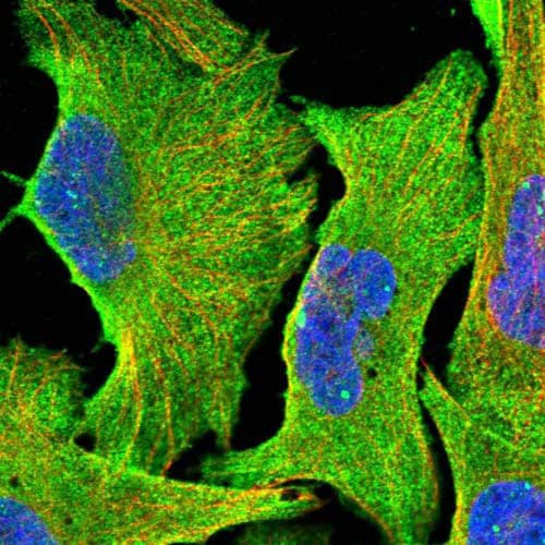 Immunocytochemistry/ Immunofluorescence - Anti-FAM180B antibody (ab122053)