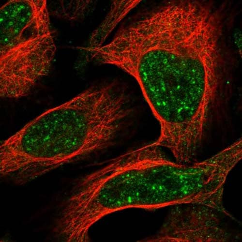 Immunocytochemistry/ Immunofluorescence - Anti-C1orf194 antibody (ab122154)