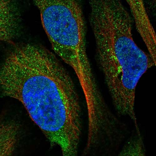 Immunocytochemistry/ Immunofluorescence - Anti-BROX antibody (ab122174)