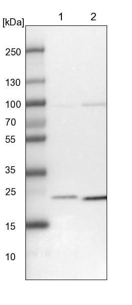 Western blot - Anti-UQCC antibody (ab122235)