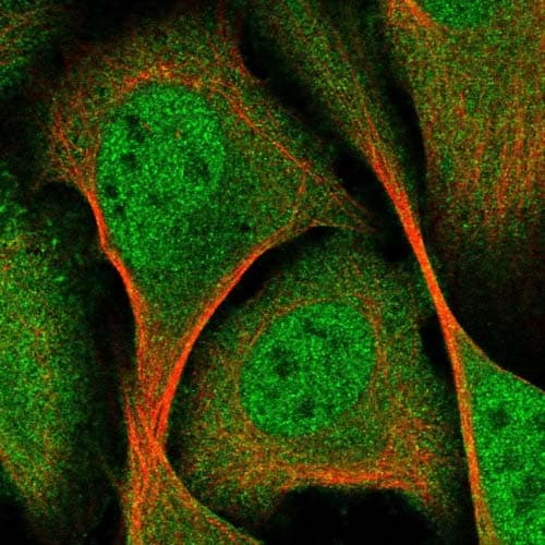 Immunocytochemistry/ Immunofluorescence - Anti-TANC1 antibody (ab122358)