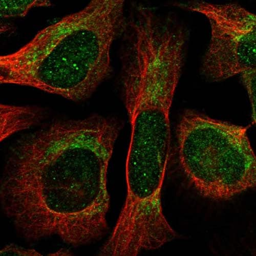 Immunocytochemistry/ Immunofluorescence - Anti-THNSL1 antibody (ab122397)