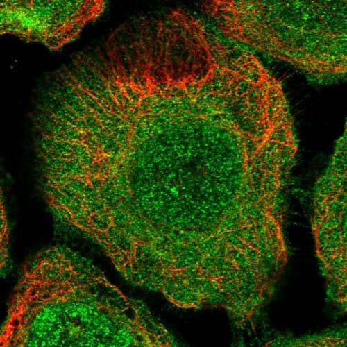 Immunocytochemistry/ Immunofluorescence - Anti-TBC1D9B antibody (ab122462)