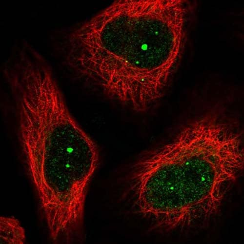 Immunocytochemistry/ Immunofluorescence - Anti-SELT antibody (ab122587)