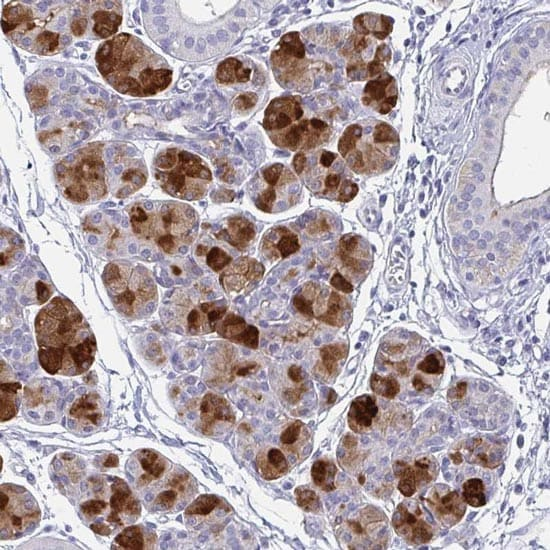 Immunohistochemistry (Formalin/PFA-fixed paraffin-embedded sections) - Anti-PRR4 antibody (ab122775)