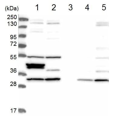 Western blot - Anti-CCDC64B antibody (ab122842)