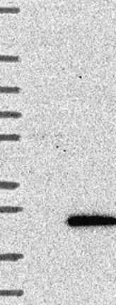 Western blot - Anti-C17orf102 antibody (ab122843)