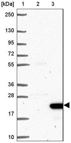 Western blot - Anti-C5orf48 antibody (ab122862)