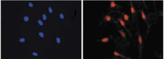 Immunocytochemistry/ Immunofluorescence - Anti-MiTF antibody (ab122982)