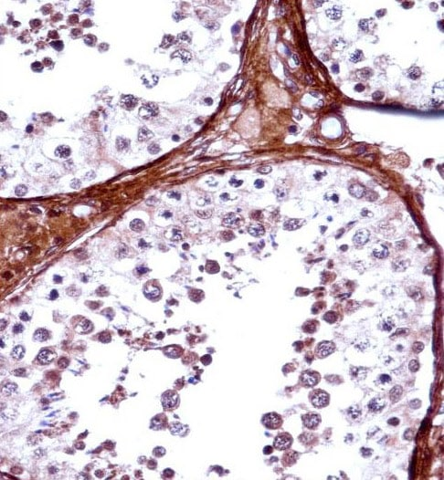 Immunohistochemistry (Formalin/PFA-fixed paraffin-embedded sections) - Anti-TBX5 antibody (ab123665)