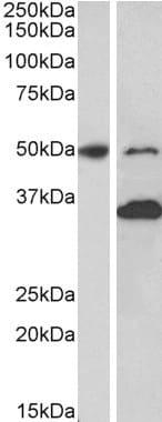 Western blot - Anti-MKRN1 antibody (ab123804)