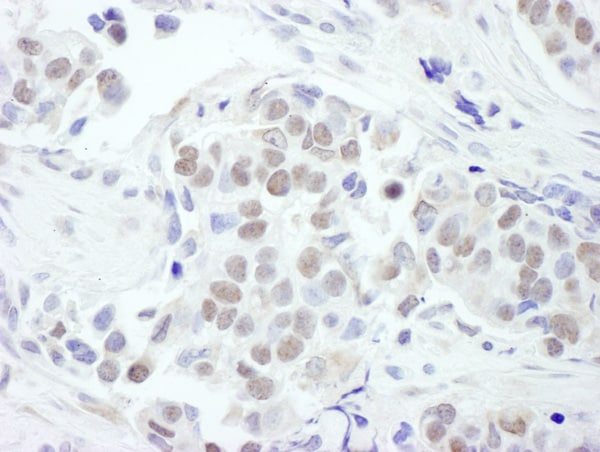 Immunohistochemistry (Formalin/PFA-fixed paraffin-embedded sections) - Anti-GATA3 antibody (ab124288)