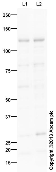 Western blot - Anti-MPP8 antibody (ab124499)