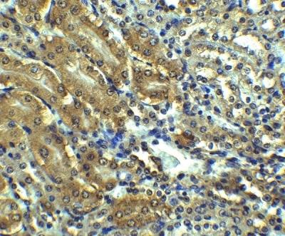 Immunohistochemistry - Anti-Angiotensin II Type 1 Receptor antibody (ab124505)