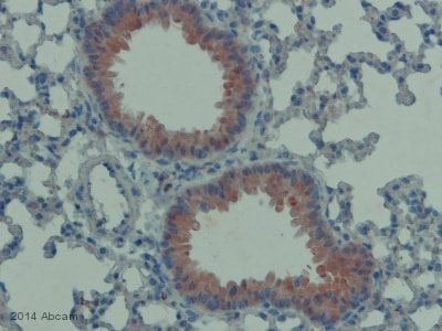 Immunohistochemistry (Formalin/PFA-fixed paraffin-embedded sections) - Anti-ICAM1 antibody (ab124760)