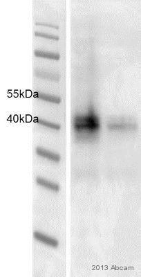 Western blot - Anti-CXCR4 antibody [UMB2] (ab124824)