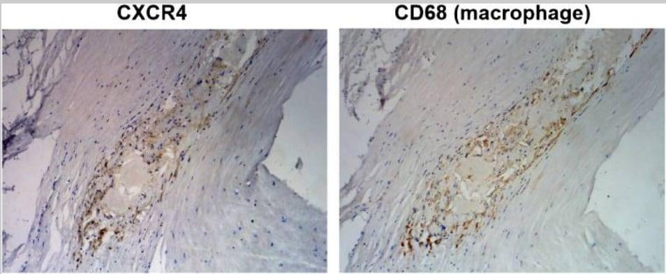 Immunohistochemistry - Anti-CXCR4 antibody [UMB2] (ab124824)