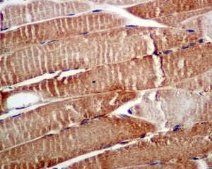 Immunohistochemistry (Formalin/PFA-fixed paraffin-embedded sections) - Anti-GCLM antibody [EPR6668] (ab124827)