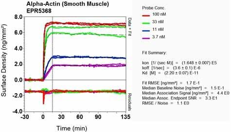 其他抗α平滑肌肌动蛋白抗体[EPR5368](AB12464)