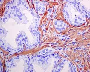 免疫组化(福尔马林/PFA固定石蜡切片)抗α平滑肌肌动蛋白抗体[EPR5368](AB12464)
