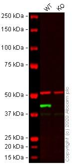 免疫印迹-抗α-平滑肌肌动蛋白抗体[EPR5368](ab124964)
