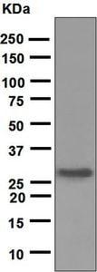 Western blot - Anti-Noggin antibody [EPR1561] (ab124977)