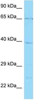 Western blot - Anti-Solute carrier family 22 member 5 antibody (ab125416)
