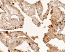 Immunohistochemistry (Formalin/PFA-fixed paraffin-embedded sections) - Anti-TTF1 antibody (ab125650)