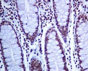 Immunohistochemistry (Formalin/PFA-fixed paraffin-embedded sections) - Anti-CTCF antibody [EPR7314(B)] (ab128873)
