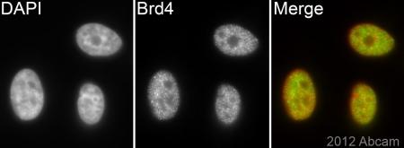 免疫细胞化学/免疫荧光-抗Brd4抗体[EPR5150(2)](ab128874)