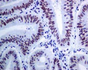 免疫组织化学(福尔马林/PFA固定石蜡切片)-抗Brd4抗体[EPR5150(2)](ab128874)