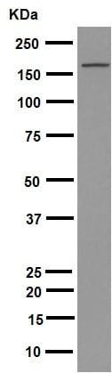 免疫印迹-抗Brd4抗体[EPR5150(2)](ab128874)