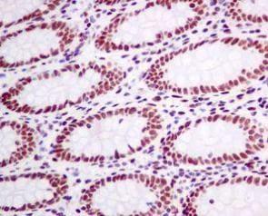 Immunohistochemistry (Formalin/PFA-fixed paraffin-embedded sections) - Anti-CtBP1 antibody [EPR6800] (ab129181)