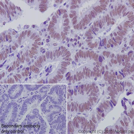 Immunohistochemistry (Formalin/PFA-fixed paraffin-embedded sections) - Anti-KDM1/LSD1 antibody [EPR6825] - Nuclear Marker and ChIP Grade (ab129195)