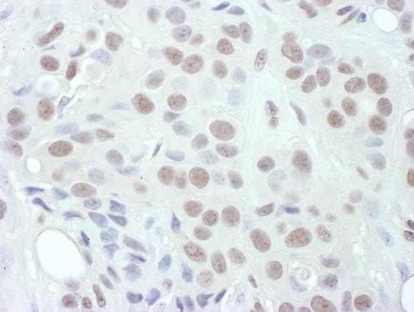 Immunohistochemistry (Formalin/PFA-fixed paraffin-embedded sections) - Anti-MEK1 (phospho T286) antibody (ab129431)