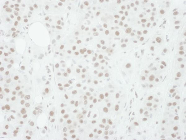 Immunohistochemistry (Formalin/PFA-fixed paraffin-embedded sections) - Anti-MEK1 (phospho T286) antibody (ab129457)