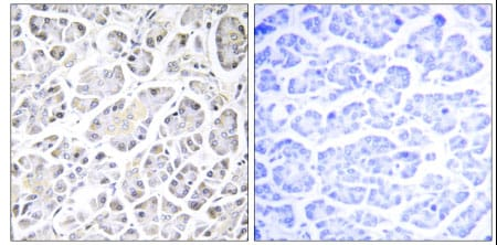 Immunohistochemistry (Formalin/PFA-fixed paraffin-embedded sections) - Anti-ATP5G3 antibody (ab129742)