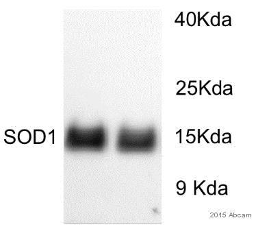 Western blot - Anti-Superoxide Dismutase 1 antibody (ab13498)