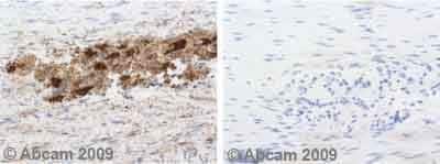 Immunohistochemistry (Formalin/PFA-fixed paraffin-embedded sections) - Anti-SOD2/MnSOD antibody (ab13534)