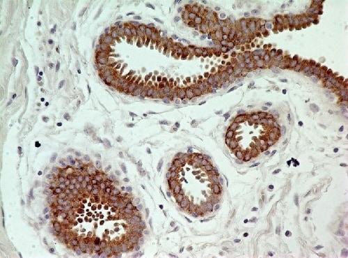 Immunohistochemistry (Formalin/PFA-fixed paraffin-embedded sections) - Anti-Caspase-3 antibody [31A893] (ab13586)