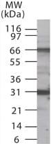 Western blot - Anti-p66 beta antibody (ab13713)