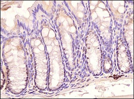 Immunohistochemistry (Formalin/PFA-fixed paraffin-embedded sections) - Anti-TLR3 antibody [40C1285] (ab13915)